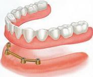 Балочное крепление зубных имплантов