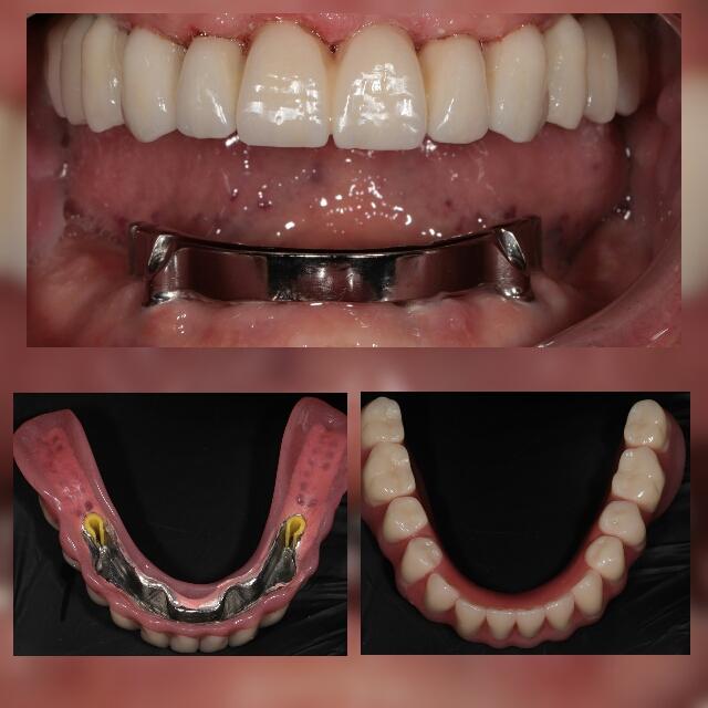 Пациент врача стоматолога-ортопеда Будагяна Г.Ю.