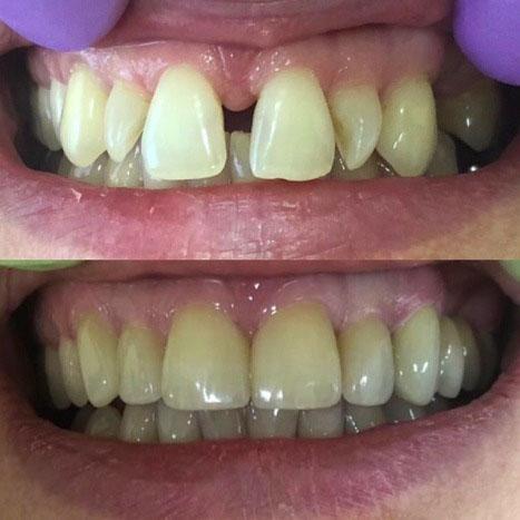 Работа врача-стоматолога нашей клиники Дугарь Д.А.